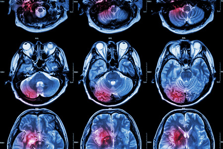 Foto de Film MRI ( Magnetic resonance imaging ) of brain ( stroke , brain tumor , cerebral infarction , intracerebral hemorrhage )  ( Medical , Health care , Science Background ) ( Cross section of brain ) - Imagen libre de derechos