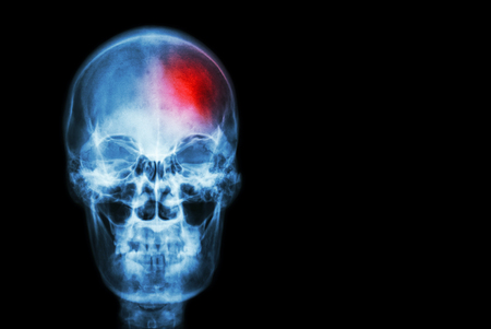 Photo pour Stroke ( Cerebrovascular accident ) . film x-ray skull of human with red area ( Medical , Science and Healthcare concept and background ) - image libre de droit