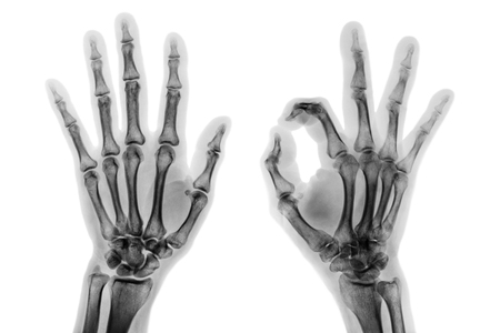 Photo pour X - ray both hands with OK sign . - image libre de droit