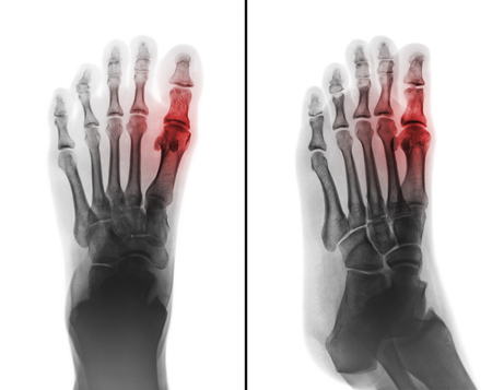 Photo pour Gouty arthritis . film x-ray of human foot and arthritis at first metatarsophalangeal Joint . 2 position ( front and side view ) - image libre de droit
