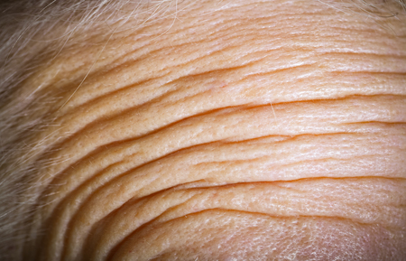 Forehead of an elderly woman with deep wrinkles. Close up detail. Toned.