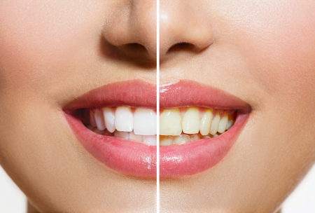 Photo pour Woman Teeth Before and After Whitening  Oral Care - image libre de droit