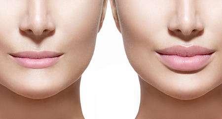 Foto de Before and after lip filler injections. Lips closeup over white - Imagen libre de derechos