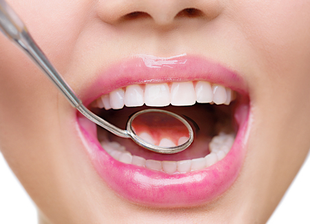 Photo for Healthy white woman's teeth and a dentist mouth mirror closeup - Royalty Free Image