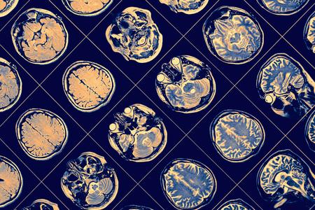 Foto de MR image of human brain - Imagen libre de derechos