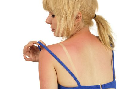 Blond female with a bad sunburn on her back.