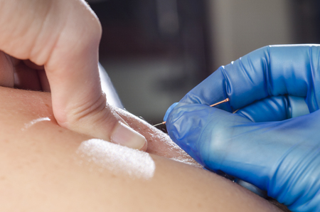Foto de Closeup of a needle and hands of physiotherapist doing a dry needling. - Imagen libre de derechos