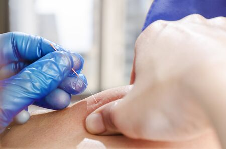 Photo for Closeup of a needle and hands of physiotherapist doing a dry needling. - Royalty Free Image