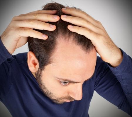 Foto de Caucasian young man controls hair loss - Imagen libre de derechos