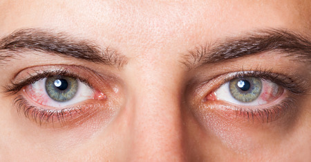 Photo for Close Up of two irritated red blood eyes. - Royalty Free Image