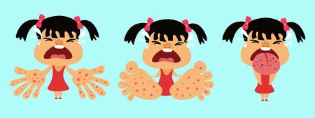 Ilustración de HFMD children infected. hand foot and mouth disease. Girl infected enterovirus. Cartoon vector illustration - Imagen libre de derechos
