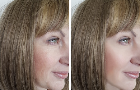 Photo pour face woman wrinkles before and after procedures - image libre de droit