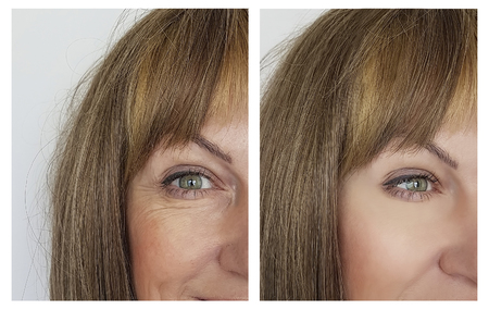 Photo pour woman face wrinkles before and after - image libre de droit
