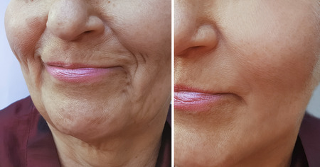Photo pour face of an elderly woman wrinkles before and after - image libre de droit