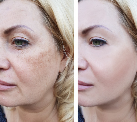 Photo pour Woman wrinkles before and after pigmentation - image libre de droit
