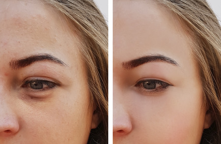 Photo pour Eye swelling, wrinkles before and after cosmetic procedure - image libre de droit