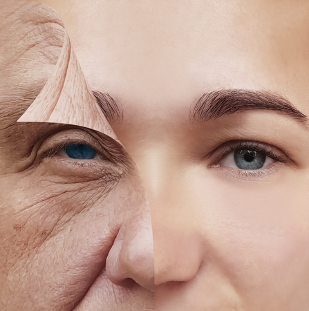 Photo pour before and after conception of woman face wrinkles before and after cosmetic procedures - image libre de droit