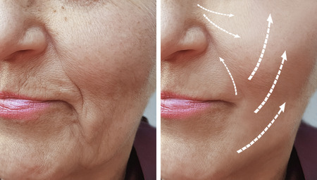 Photo pour woman wrinkles before and after procedures - image libre de droit