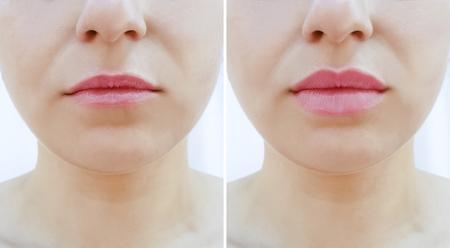 Foto de girl lips before and after augmentation - Imagen libre de derechos