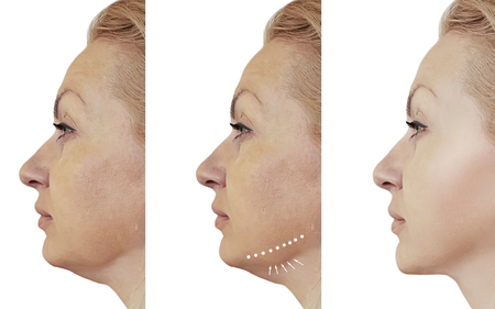 Photo for woman double chin before and after procedures - Royalty Free Image