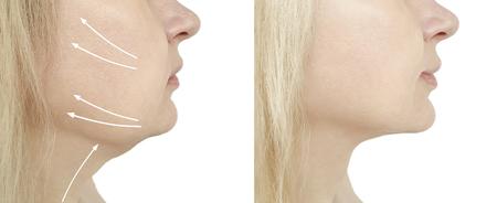 Photo pour woman double chin before and after procedures, oval - image libre de droit