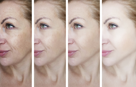 Photo pour female eye wrinkles before and after treatments - image libre de droit