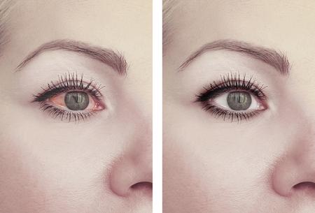 Foto de woman red eye before and after procedures - Imagen libre de derechos