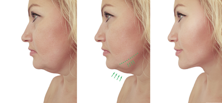 Photo for woman double chin sagging before and after - Royalty Free Image