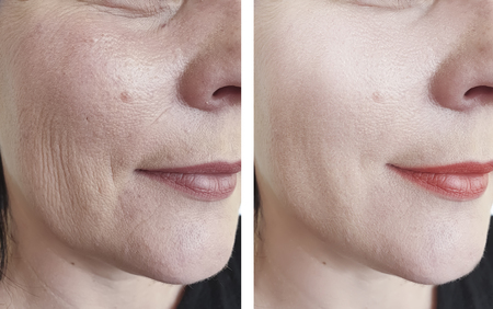 Foto de woman wrinkles face before and after beautician - Imagen libre de derechos