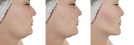 Photo for woman double chin lift before and after procedures - Royalty Free Image