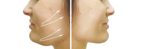 Photo pour woman double chin sagging before and after procedure - image libre de droit