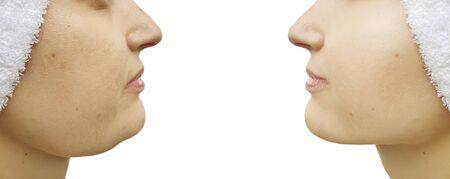 Photo pour woman double chin before and after correction - image libre de droit