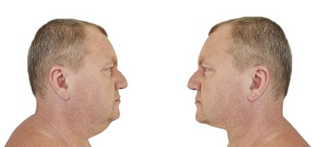 Photo for male double chin before and after treatment - Royalty Free Image