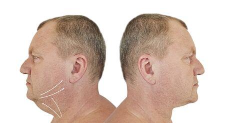 Photo pour male double chin before and after treatment - image libre de droit