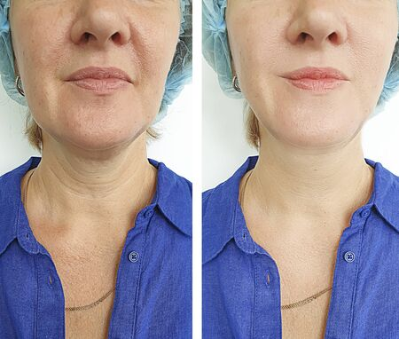Photo for woman face wrinkles before and after treatment - Royalty Free Image