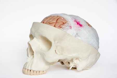 Foto de Guaze wrapping around brain model demonstring brain injury on the white background - Imagen libre de derechos