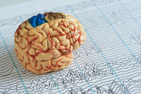 Foto de Artificial human brain model on paper of EEG waves background - Imagen libre de derechos