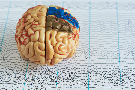 Foto de Human brain model on background of brain waves from electroencephalography - Imagen libre de derechos