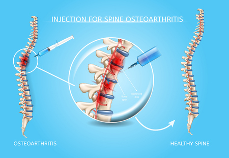 Illustration pour Spine Osteoarthritis Injection Realistic Vector Medical Scheme. Medications Administration with Syringe Needle to Damaged Spinal Column Area and Healthy Because of Medical Treatment Spine Illustration - image libre de droit
