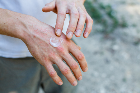 Photo pour Ointment on hand. Applying the ointment in the treatment and hydration of the skin.Psoriasis skin. Horizontal photo - image libre de droit
