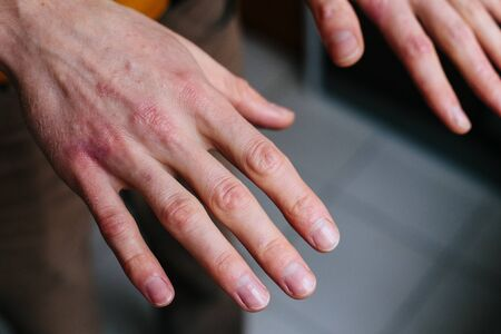 Photo pour high angle view of hands suffering the dryness on the skin and deep cracks on knuckles. - image libre de droit