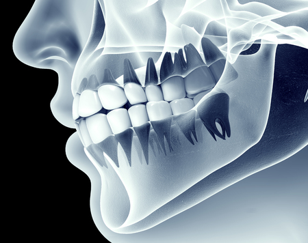 Foto de x-ray image of a jaw with teeth. - Imagen libre de derechos