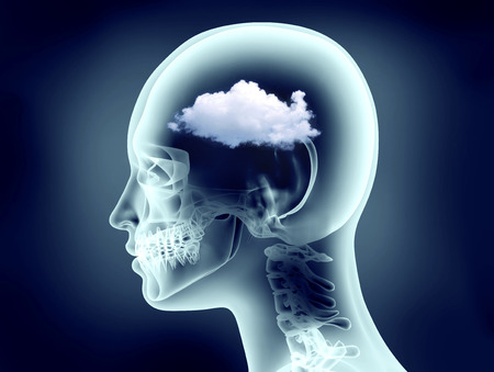 Photo for x-ray image of human head with cloud - Royalty Free Image