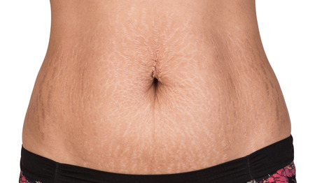 Photo pour Women body with fat belly and stretch marks - image libre de droit