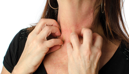 Foto de Woman scratching her neck, isolated on white - Imagen libre de derechos