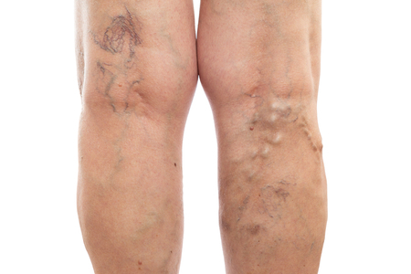 Photo pour Female legs with swollen veins and varicose as vascular condition concept isolated on white studio background - image libre de droit