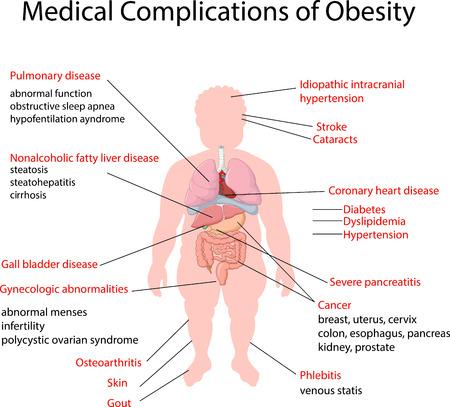 Illustrazione per Vector illustration of Medical Complication of Obesity - Immagini Royalty Free