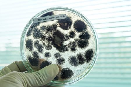 Foto de fungi colony in petridish - Imagen libre de derechos