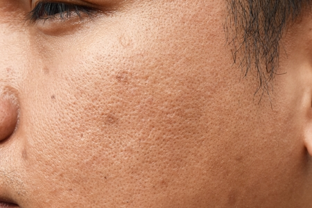 Foto de pores and oily on surface young asian man face skin do not take care for a long time - Imagen libre de derechos