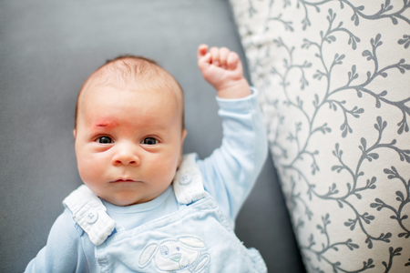 Photo pour Little newborn baby with little wound on his forehead, scratch - image libre de droit